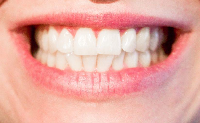 Aktualna technologia stosowana w salonach stomatologii estetycznej być może spowodować, że odbierzemy śliczny uśmiech.